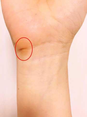 1ヶ月後のマウスだこ部分の手首の状態(イビサクリーム使用後)